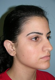 before-Lema