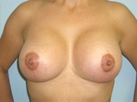 breast-augmentation-after-4