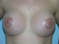 breast-augmentation-after-8
