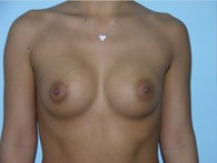 breast-augmentation-before-10