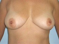 breast-augmentation-before-4
