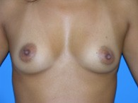 breast-augmentation-before-6