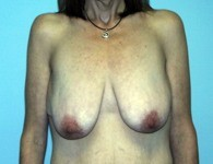 breast_augmentation2_before