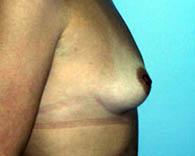 breastaug5_b