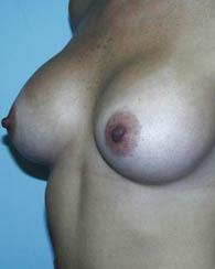 breastaug7_a