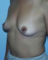 breastaug7_b