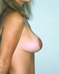 breastlift1_a