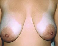 breastlift2_b