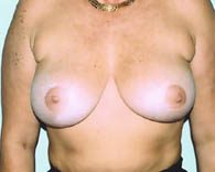 breastlift3_a