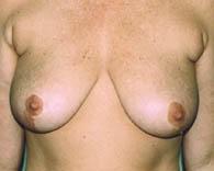 breastlift3_b
