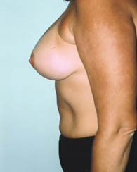 breastlift4_a
