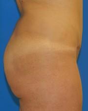 buttocks -before1 small