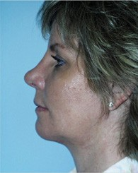 chin_implant_after_2