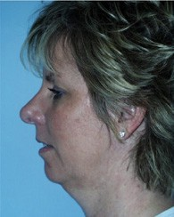 chin_implant_before_2