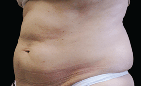 coolsculpting-miami-female-side-before