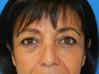 facelift-before-2