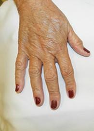 hand32