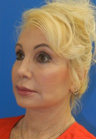 naples-woman-facelift-after-1
