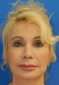 naples-woman-facelift-after-2