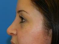 nose-rhinoplasty-after-9-1