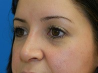nose-rhinoplasty-after-9-2