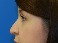 nose-rhinoplasty-before-9-1