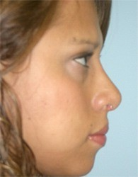 nose1b_after