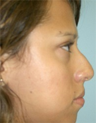 nose1b_before