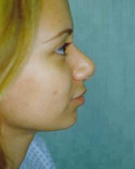 nose3z