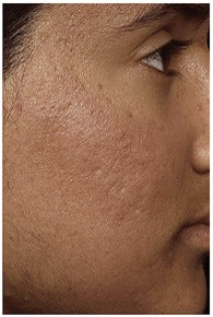 scar_removal_after_2