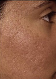 scar_removal_after_6