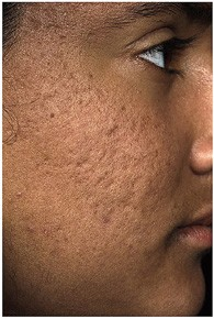 scar_removal_before_1