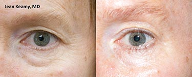 ThermiSmooth - JK male eyes before and after_72dpi