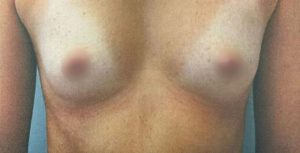 breast-augmentation-14a-300x153