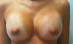 breast-augmentation-14b-300x182