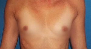 breast-augmentation-17a-300x163