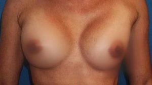 breast-augmentation-17b-300x169