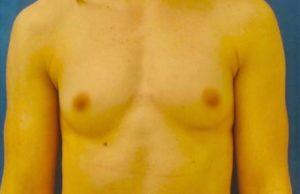breast-augmentation-18a-300x194