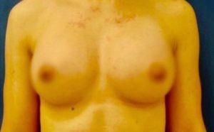 breast-augmentation-18b-300x186