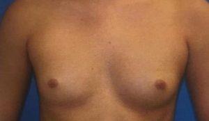 breast-augmentation-19a-300x174