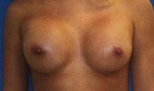 breast-augmentation-19b-300x178