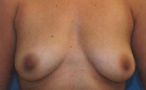 breast-augmentation-20a-300x185