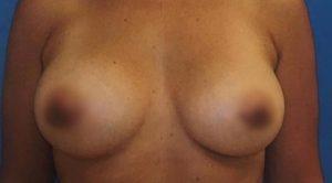 breast-augmentation-20b-300x166