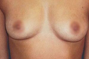 breast-augmentation-21a-300x199
