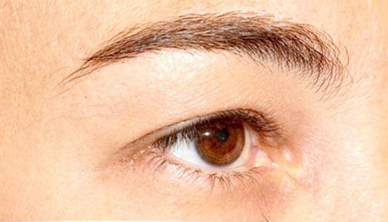 eyelid-a