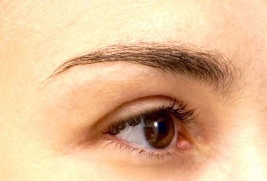 eyelid-a2