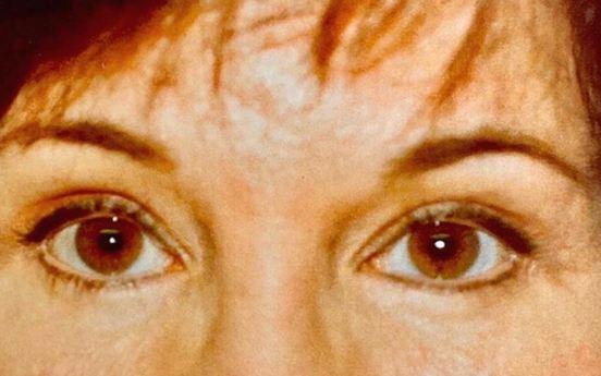 eyelid-after-1