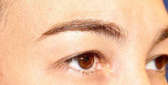eyelid-b1