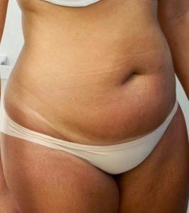 liposuction-1a-266x300