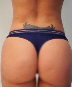 liposuction-6b-249x300